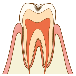 むし歯C1