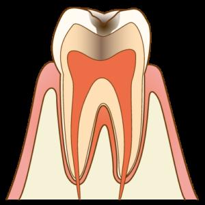 むし歯C2