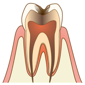 むし歯C3