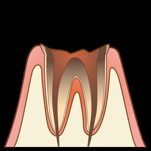 むし歯C4