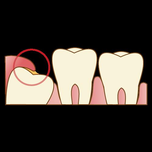 周囲の歯を歯周病から守る