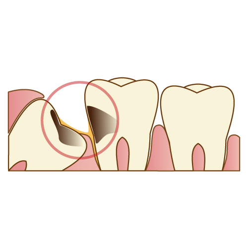 前方の歯を虫歯にさせない